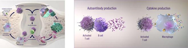 Autoantibody and Cytokine Production in RA & RA Mechanism of Disease
